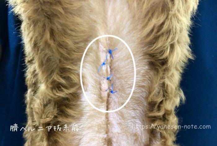 臍ヘルニア手術後 傷口